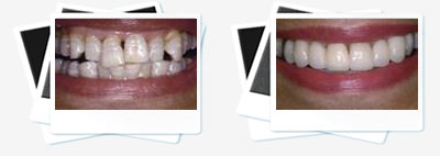 cosmetic doubles veneers
