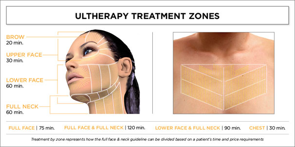 ultherpay treatment zones marbella