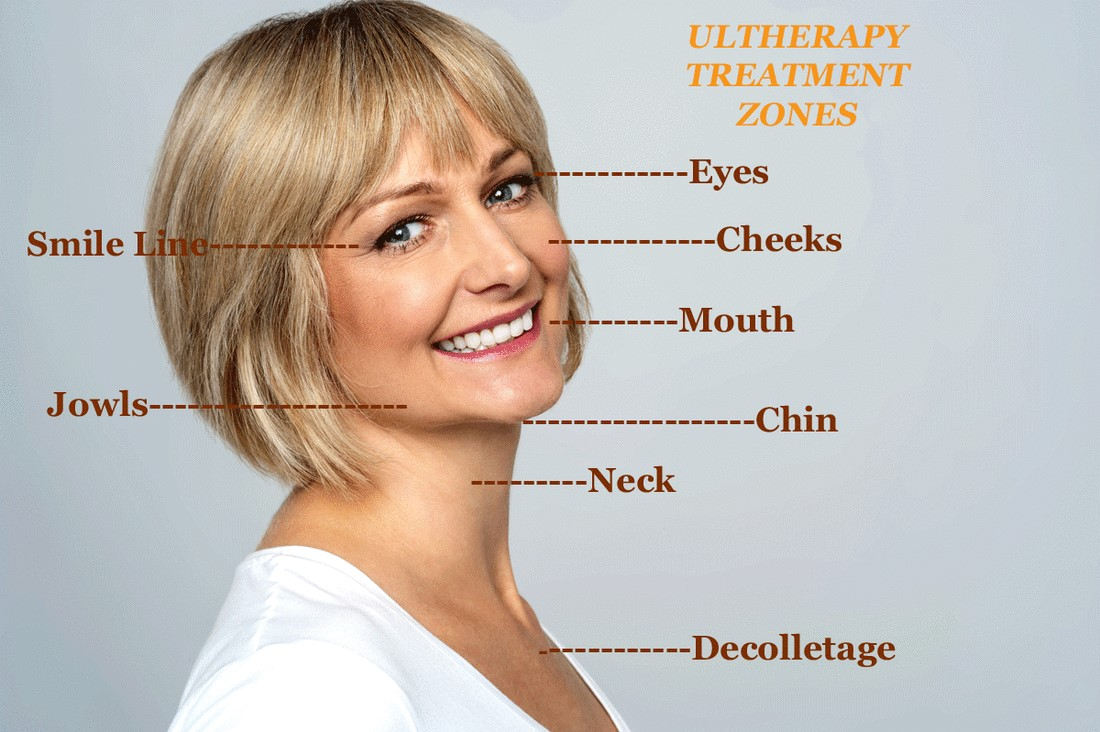 ultherpay facelift marbella