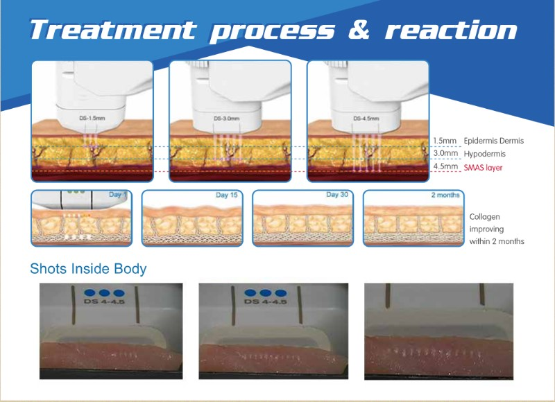 treatment process