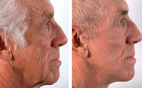 men facelift marbella