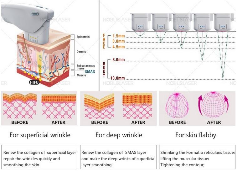 wrinkle removal marbella